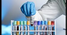 50% popusta na kompletnu biohemijsku analizu krvi + besplatna konsultacija