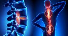 10% popusta na osteoporozu