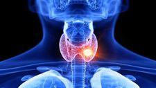 18% popusta na analizu hormona stitne zlezde T3, T4 I TSH + besplatna konsultacija paket 2
